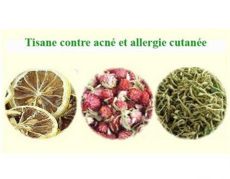 Tisane acné