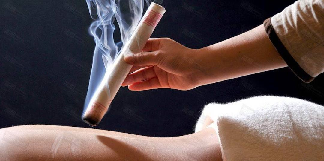 Moxibustion